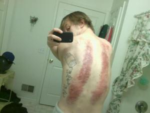 Joe bruised back